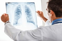 App brasileiro auxilia análise de radiografias
