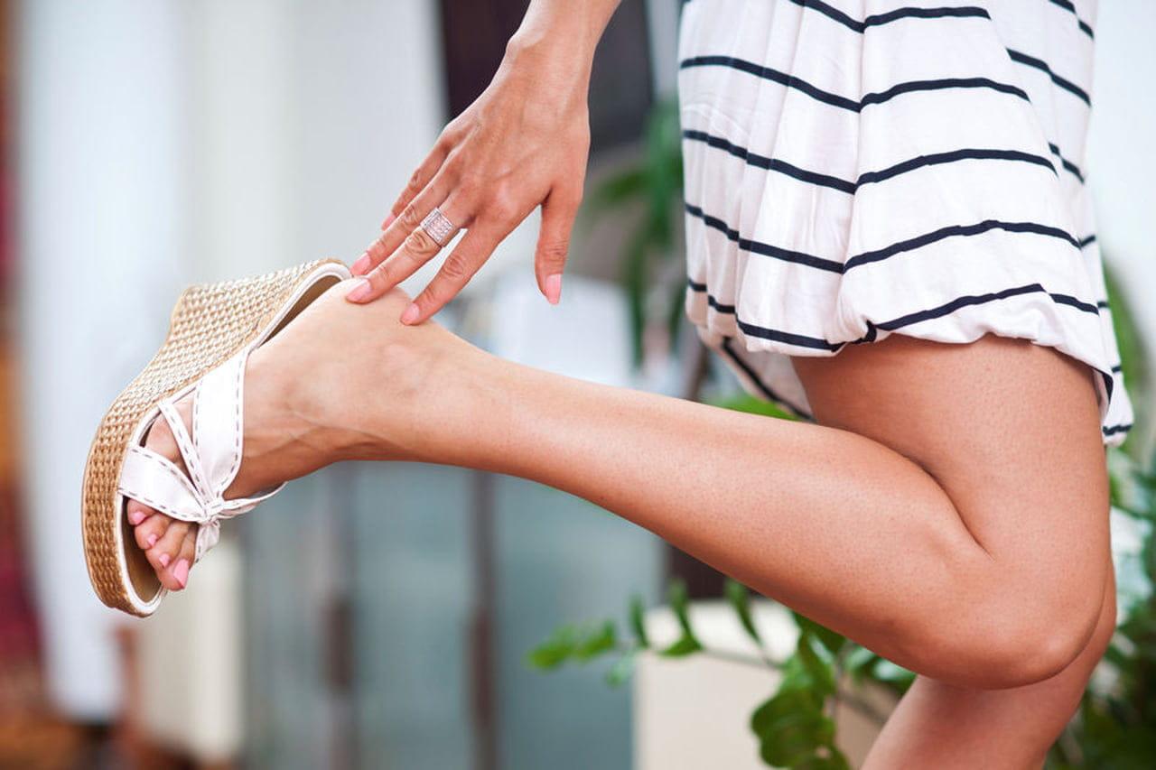 varizes e coceira nas pernas