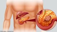 Técnica é esperança contra o câncer de pâncreas