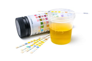 vinagre de maça cura infecção urinaria