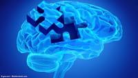 Cordão umbilical pode combater o Alzheimer