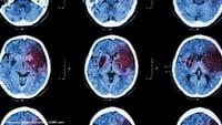 Vírus da herpes associado ao mal de Alzheimer