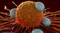 Tratamento pioneiro cura câncer avançado