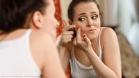 Acne pode fazer bem para a pele, diz estudo