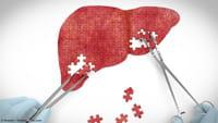 Surto de hepatite A interrompe queda da doença