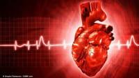 Remédio para Parkinson causa arritmia cardíaca