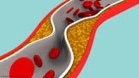 Criada fórmula para controlar o colesterol alto