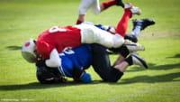 Dano cerebral em 99% dos jogadores da NFL