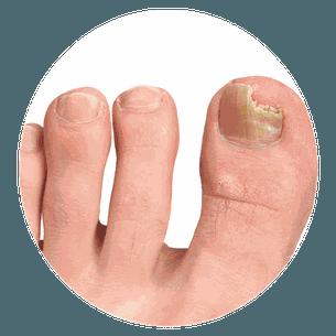 vinagre de maça cura fungos nas unhas