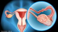Cientistas criam vacina para câncer de ovário